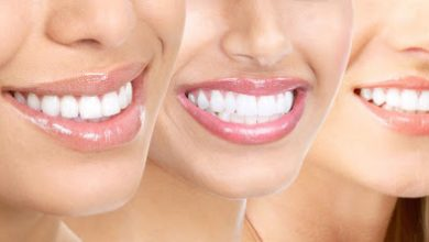 Photo of Invisalign Aftercare: What Are Its Do's And Don'ts?