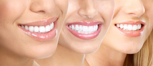 Invisalign Aftercare What Are Its Do's And Don'ts