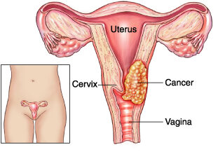 Photo of Signs and symptoms of uterine cancer – Treatment and risk factors.