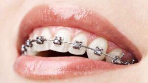 Teeth Alignment Treatment