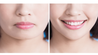 Photo of Here Are Your Non-Surgical Options to Get Voluminous Lips