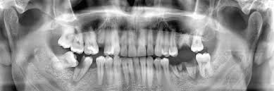 Photo of Tooth Extraction Guide: Pros, Methods, And Cost of Wisdom Teeth Removal