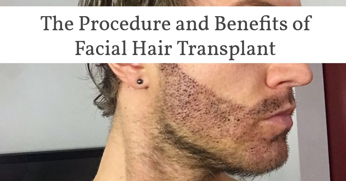facial hair transplant- The procedure and benefits of facial hair transplant