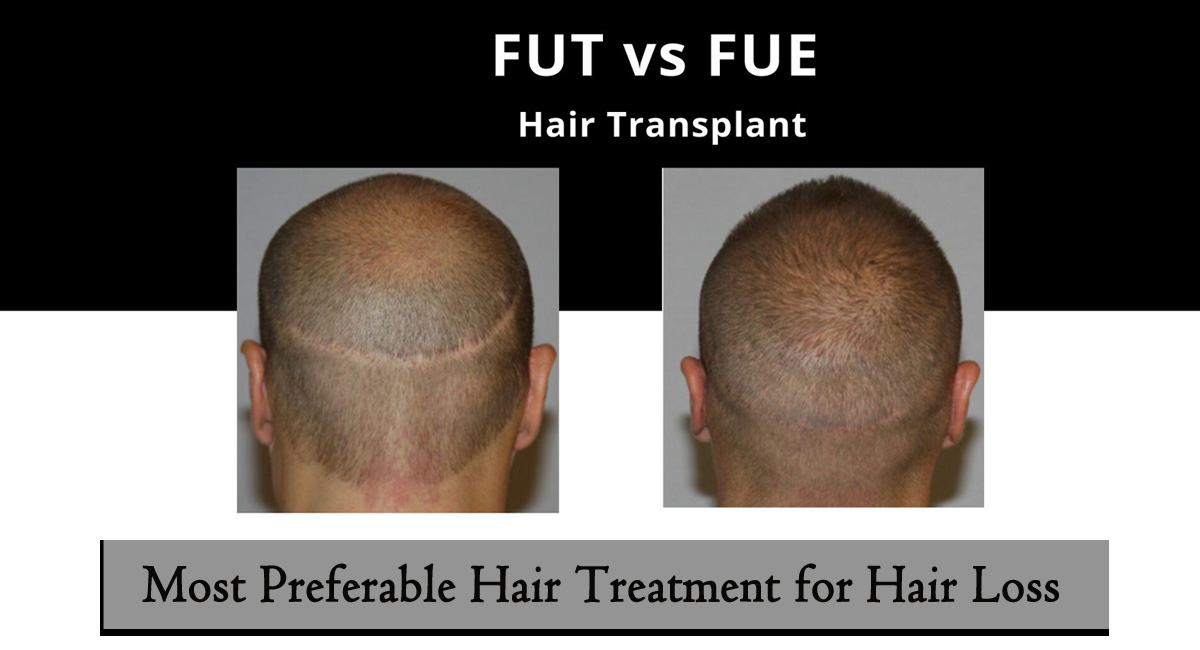 FUE vs FUT-Most Preferable Hair Treatment for Hair Loss