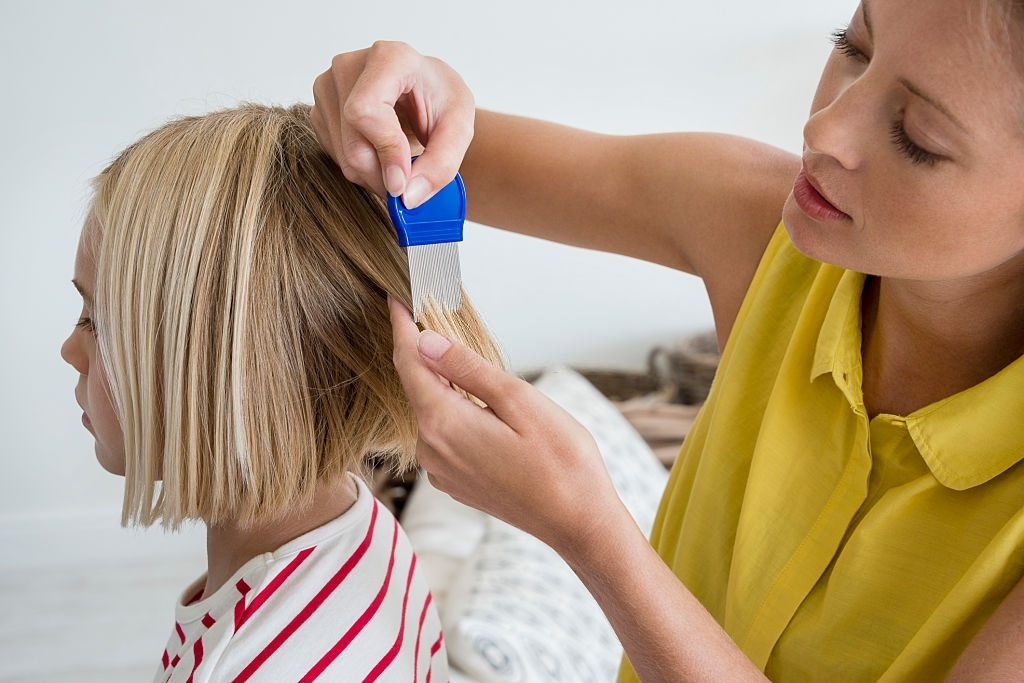 best head lice treatment